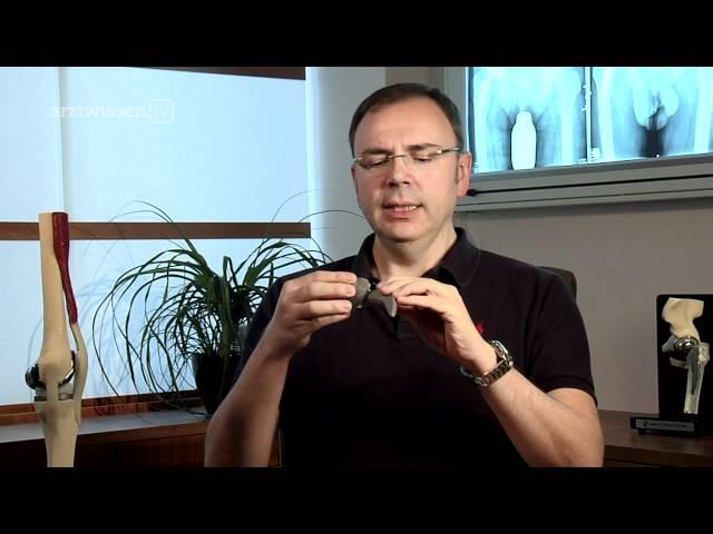 Hüftprothese: Welche Probleme können auftreten? (arztwissen.tv / Knie & Hüfte)